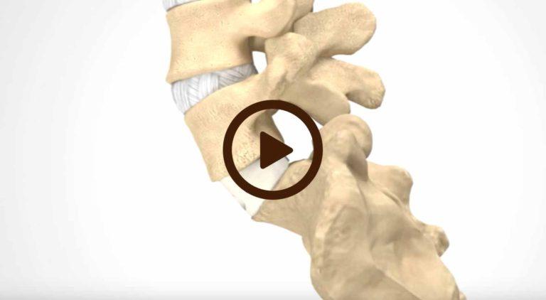 Anterior Lumbar Interbody Fusion – ALIF